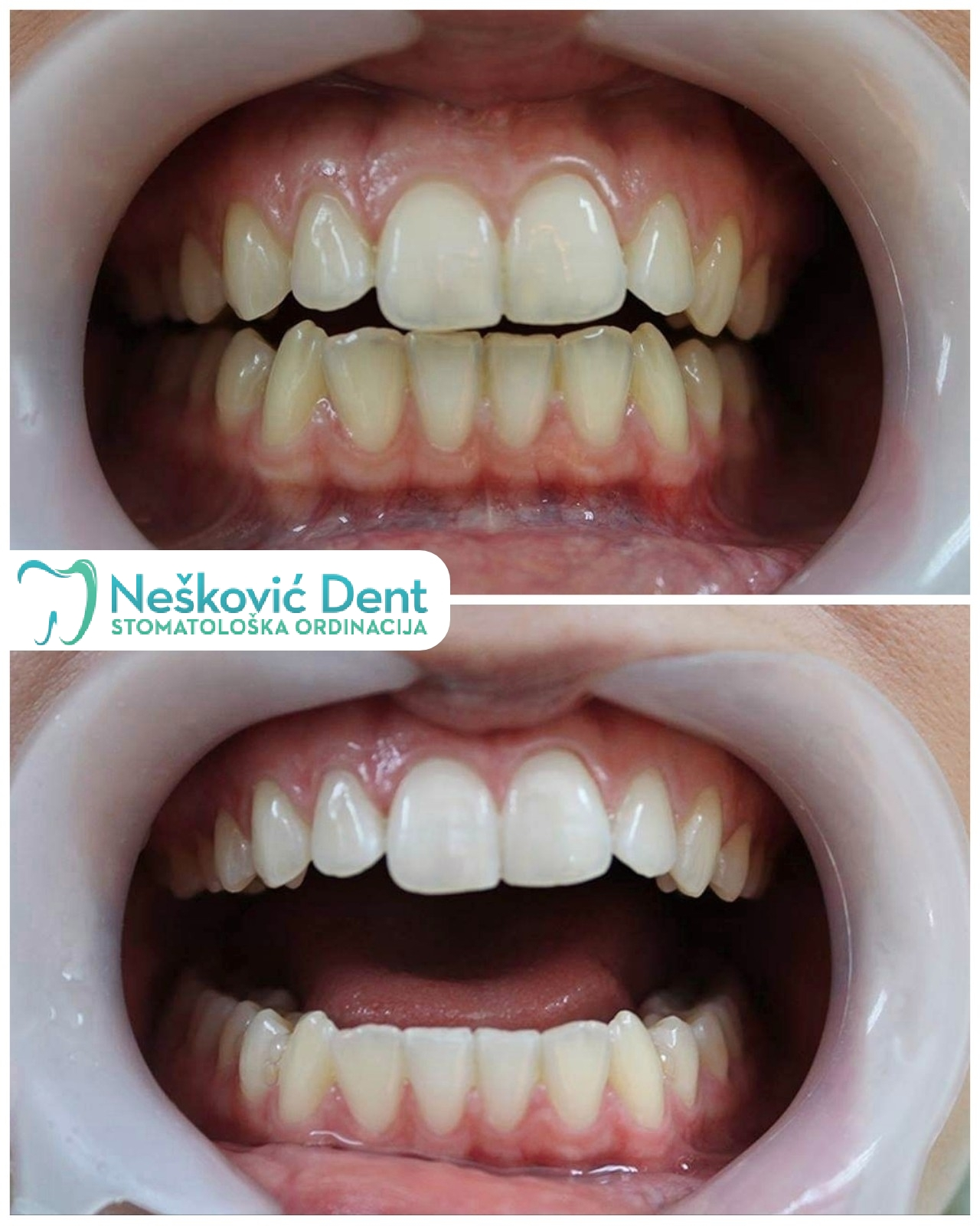 Deciji zubar novi beograd