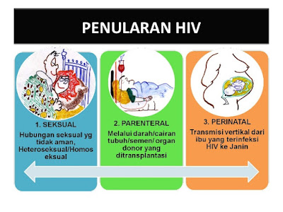 Penularan HIV Aids Melalui Apa Saja ? Baca Ini