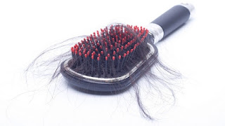 أسباب تساقط الشعر عند النساء والرجال