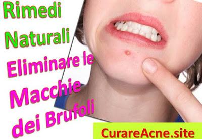 come-eliminare-le-macchie-dei-brufoli-cicatrici-acne-rimedi-naturali