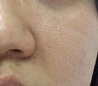 Tips Mengecilkan Pori-Pori Wajah dengan Bahan Herbal