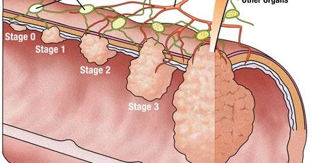 Patofisiologi Dan Pathway Ca Nasofaring, Download Doc Dan Pdf