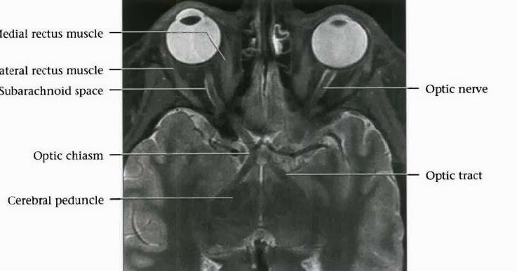 Radiology Anatomy Images : Optic Chiasm MRI Anatomy