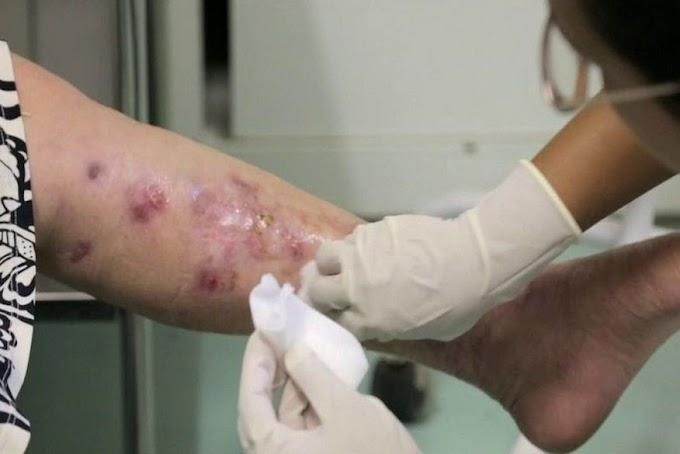 SAÚDE PÚBLICA: Doença contagiosa: MPPB constata surto epidêmico de esporotricose em João Pessoa.