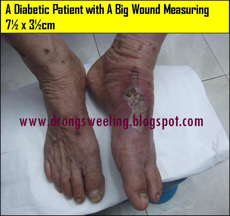 Tcm News Tcm Cure Diabetic Wound On The Leg
