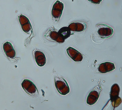 A microscopic photograph of rust spores