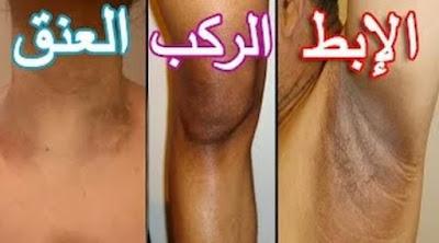 واخييييراا اسهل طريقة لتبييض المناطق السوداء في جسمك /العنق - الركب - الابط