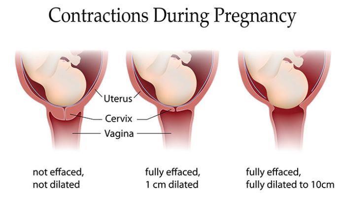 Kontraksi kehamilan
