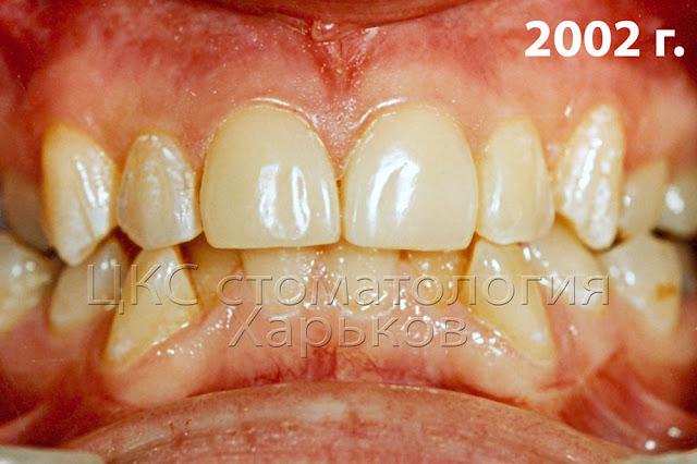 реставрация прикуса зубов до и после