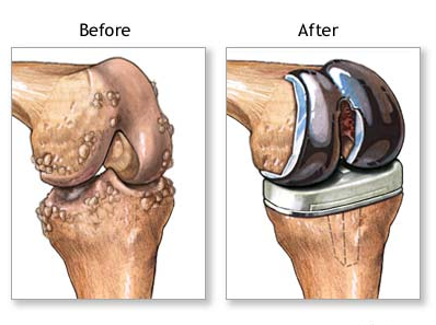 http://toshhospitals.com/joint-replacement/knee-replacement/