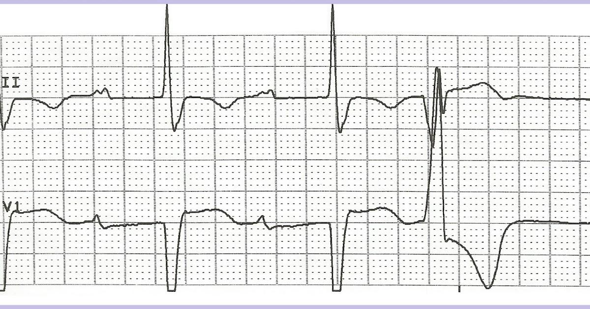 Float Nurse: Practice EKG Rhythm Strips 205