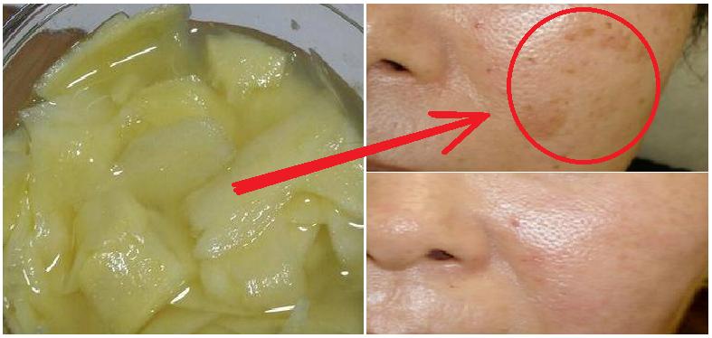 Manfaat Minum Air Lemon Untuk Tubuh