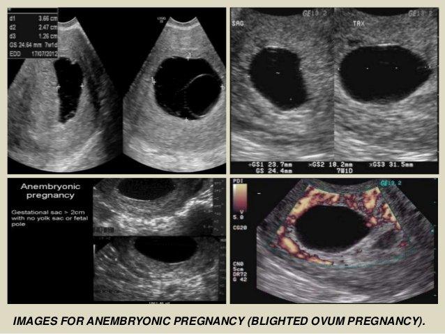Kehamilan Kosong Ternyata Bukan Akibat Jin Memindahkan Bayi, ini Penjelasan Medisnya