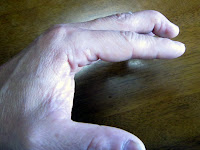 左手中指がマレットフィンガーに