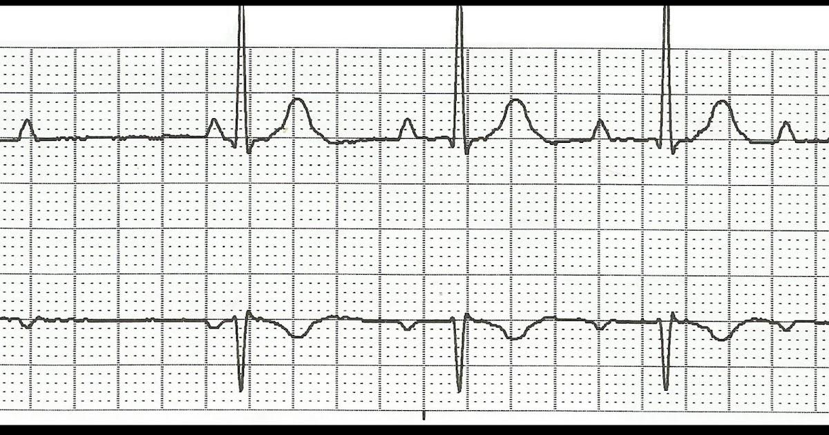 Float Nurse: Practice EKG Rhythm Strips 188