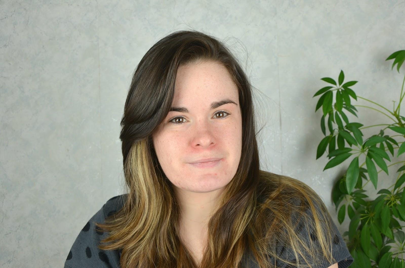 bilan de mon deuxième mois de traitemant pour l'acné