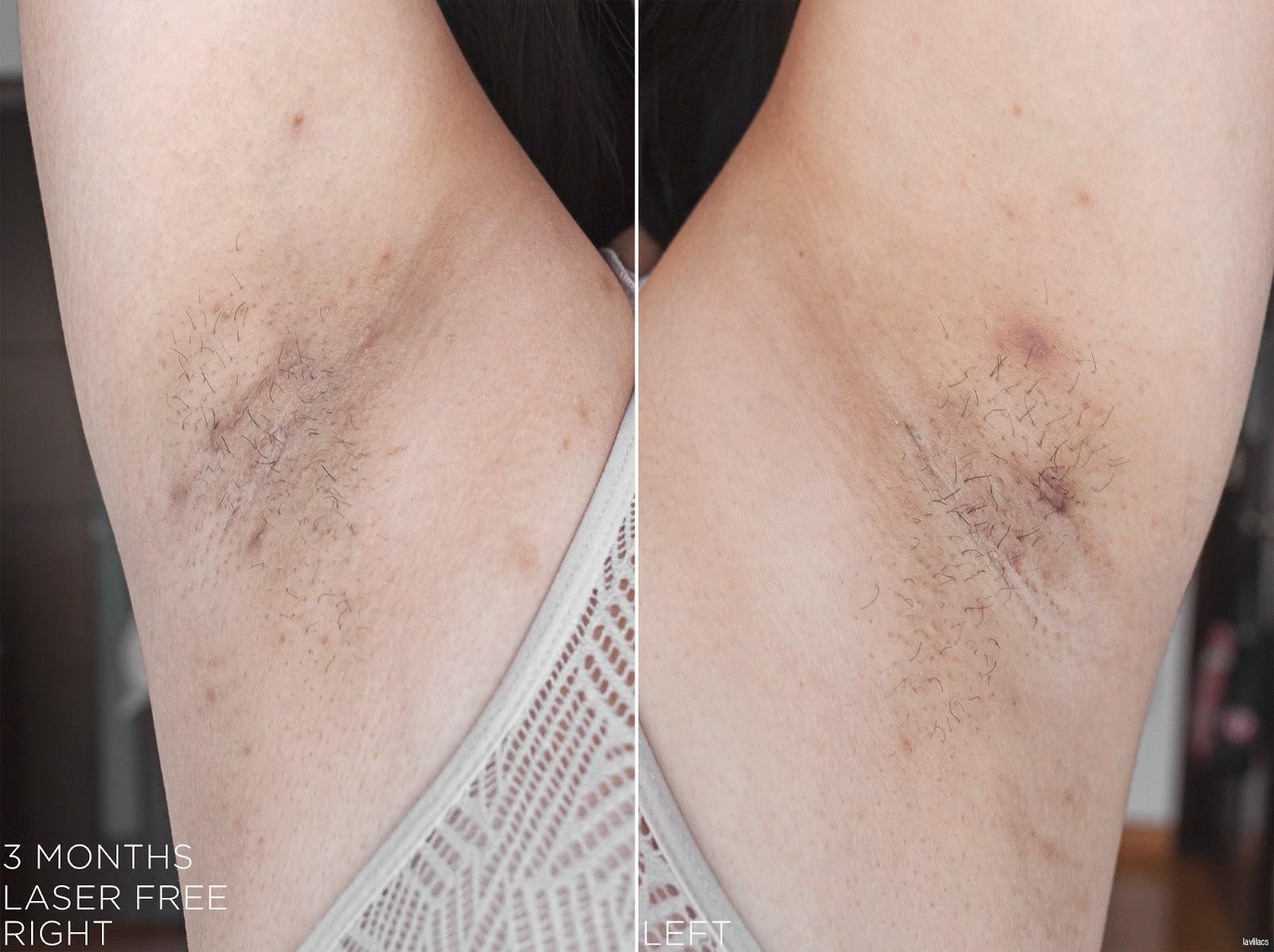 tria Hair Removal Laser Armpits Hair 3 Months Laser Free