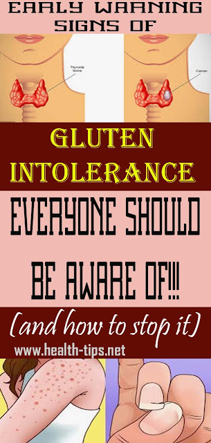 9 Signs You're Gluten Sensitive, And This Is Important to Know