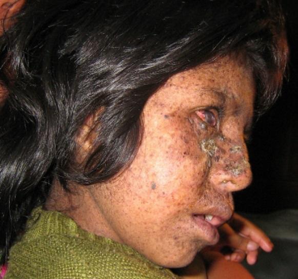 Skin Disease Xeroderma Pigmentosum