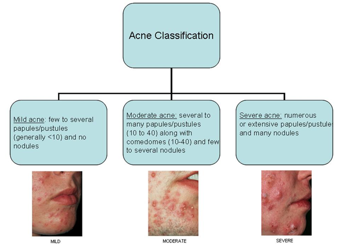 What Causes Acne Diagram Strat Wiring With Blender Pot Cystic Scar Elsavadorla