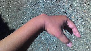 ganglion di pergelangan tangan