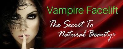 vampire facelift cost