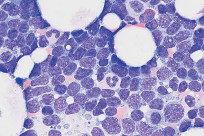 Diffuse infiltration of the bone marrow with polygonal, in some cases indented lymphatic cells in mantle cell lymphoma. Bone marrow involvement in follicular lymphoma can often only be demonstrated by histological and cytogenetic studies.