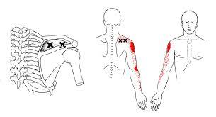 肌腹 : 三角肌下深處疼痛,外側上髁 / 橈骨頭疼痛擴散至外側前臂