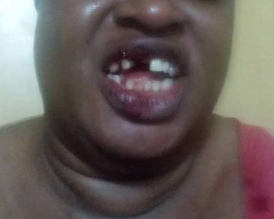 Husband Knocks Off Wife's Teeth after She Refused to Abort Pregnancy