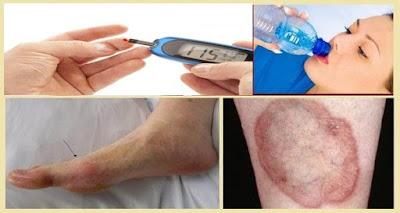 Usted no debe ignorar estos primeros signos y síntomas de la diabetes