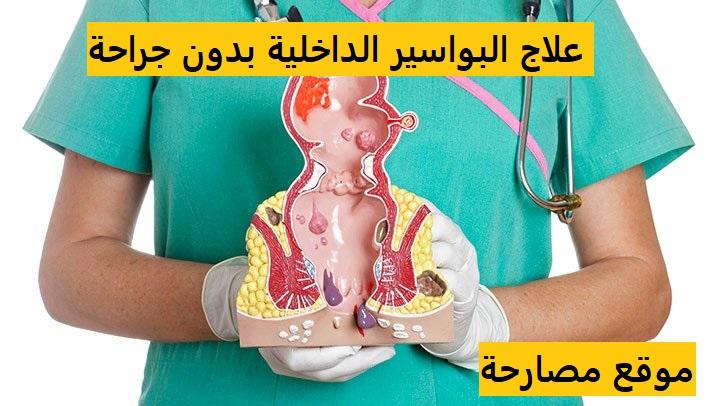 علاج البواسير الداخلية بدون جراحة
