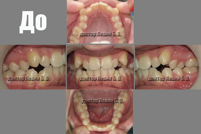 Прикус пациента в пяти фотографиях, до начала лечения брекетами