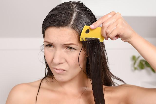Cara Menghilangkan Kutu Rambut Secara Alami dan Cepat
