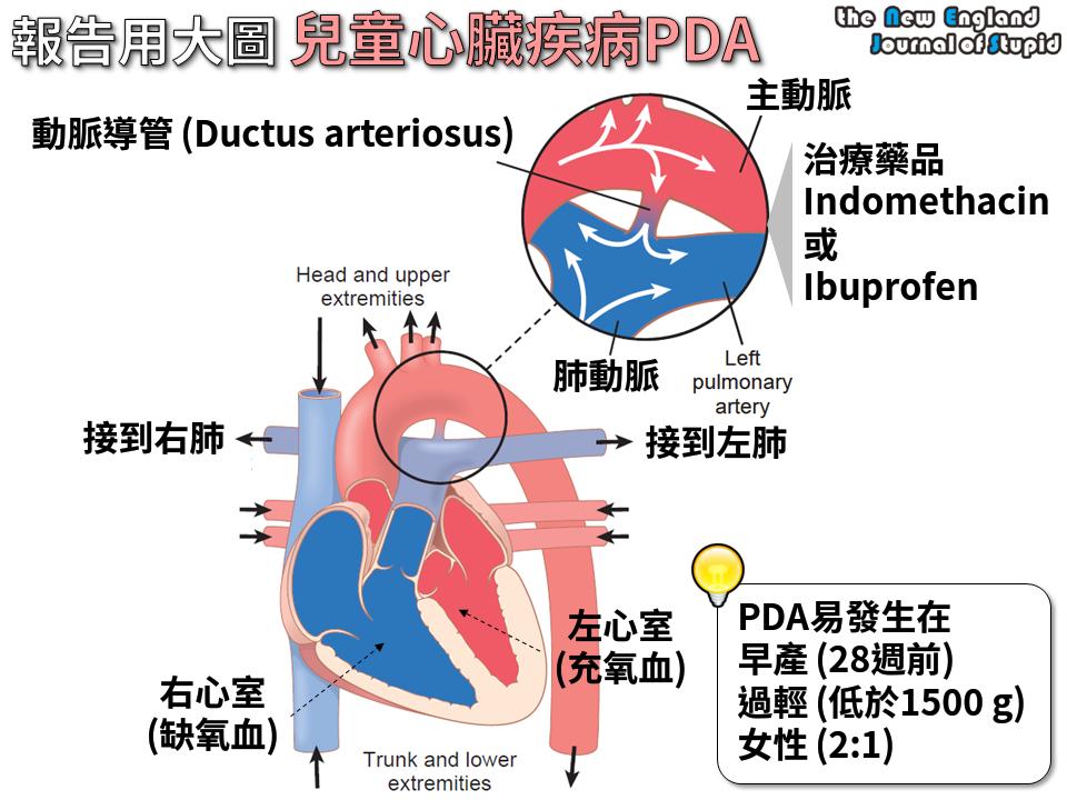 [重癥醫學] 報告用大圖 新生兒開放性動脈導管 PDA (Patent Ductus arteriosus) - NEJS