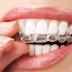 4 θεραπείες για το σφίξιμο και τρίξιμο των δοντιών
