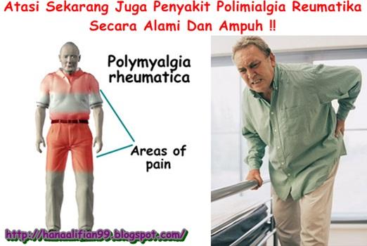 Cara Mengobati Polimialgia Reumatika Herbal Yang Alami Manjur