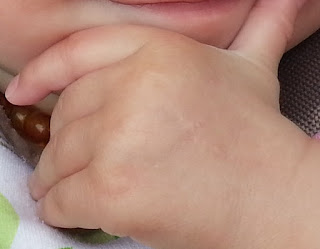 bebe-main-cicatrice