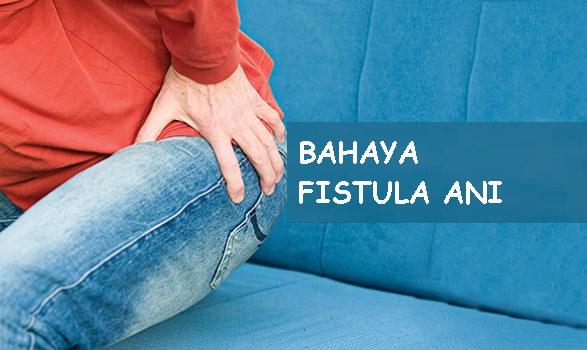 Gejala dan Komplikasi Fistula Ani