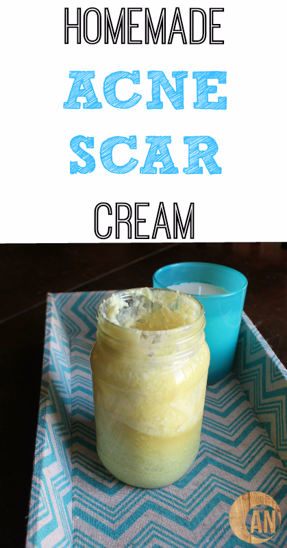 HOMEMADE ACNE SCAR CREAM
