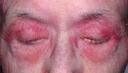 Dermatomyositis(DM) - Medsynapses
