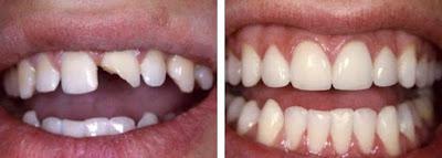 Trám răng bị vỡ có hiệu quả không