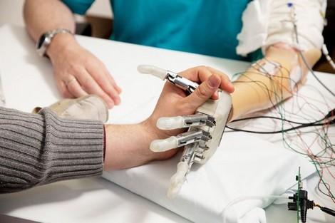ذراع صناعية متصلة بالعظم تدعم المهام البسيطة