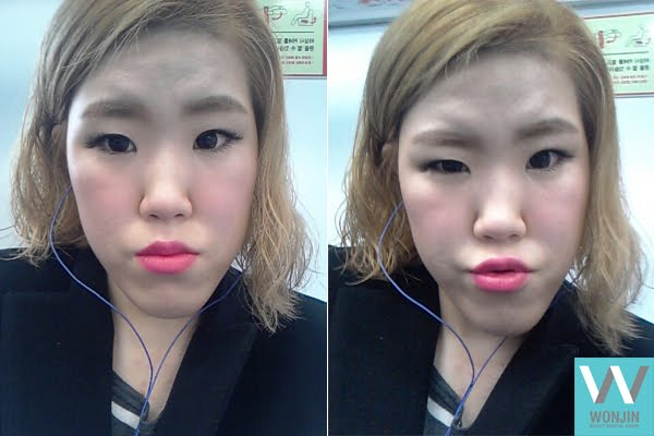 짱이뻐! - A New Life After Getting Rid of My Protruding Jaw