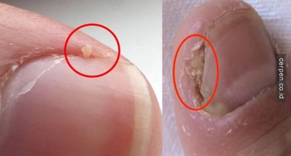 bahaya jika kulit di jari anda terkelupas mungkin anda