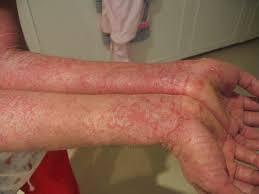 Obat Gatal Eksim Kering Merah di Lengan Tangan