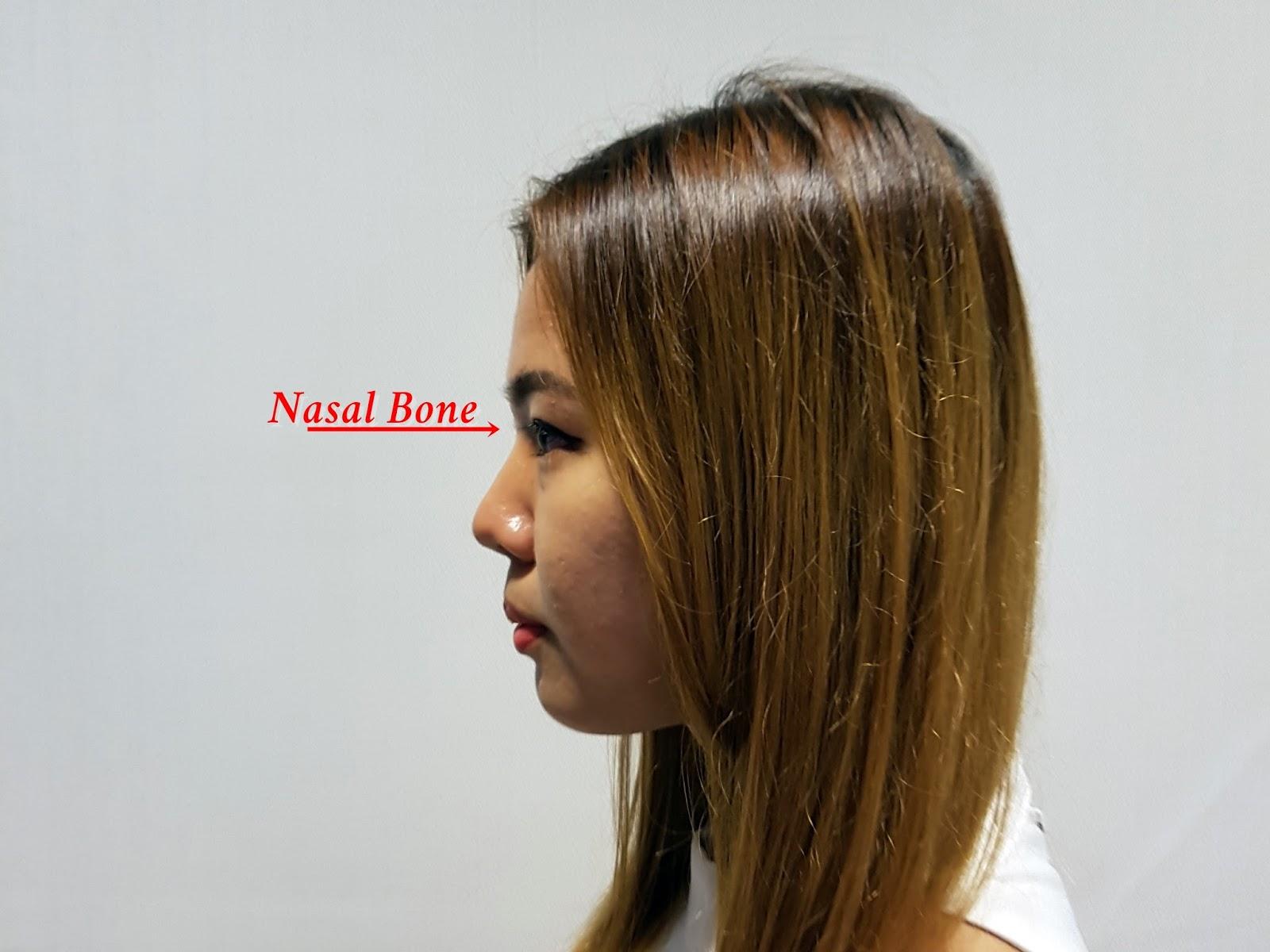 Nose Enhancement | Serene's Blog