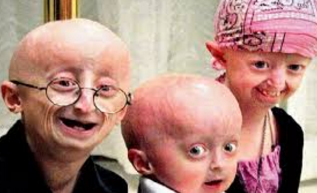 an analysis of progeria illness and the symptoms Doctor insights on: progeria share share follow @healthtap embed most of the other illnesses of aging such as cancer, cataracts, and dementia do not occur but deposition of a substance associated with aging can the symptoms of progeria be treated or reversed.