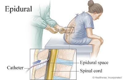 juga mungkin berasa sedikit tidak selesa semasa jarum epidural dan tiub berongga dimasukkan. Jika pesakit berasa sangat sakit atau berasa seperti kejutan elekrik, doktor bius harus diberitahu supaya ia boleh membetulkan posisi jarum atau tiub berongga epidural