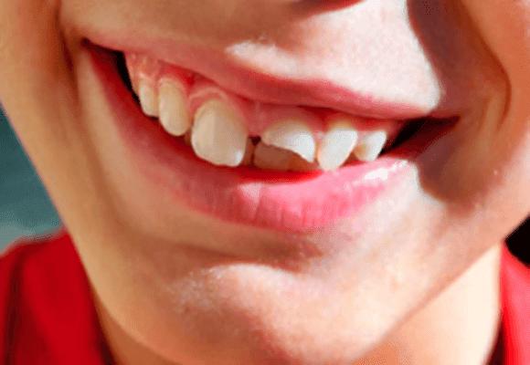 Dente-quebrado