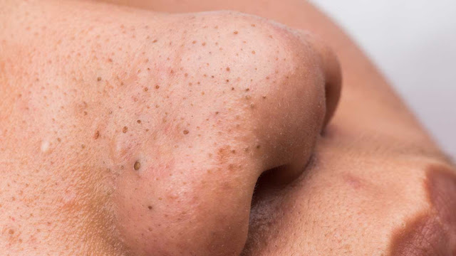 How To Remove Moles, Blackhead, Warts, Skin Tags, And Age Spots Naturally